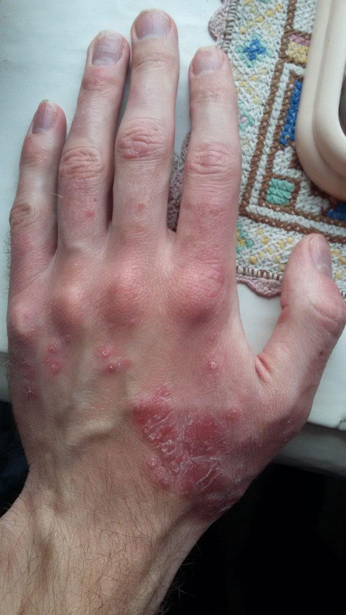 Каплевидный Псориаз Симптомы И Лечение